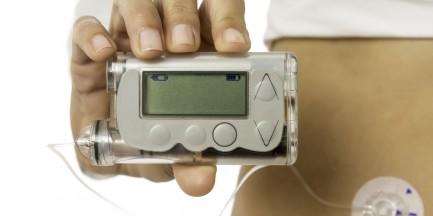 Choremu ukradziono pompę insulinową wartą 10 tys. zł